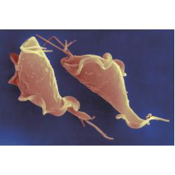 Trichomonas Vaginalis  Quality Control Slides
