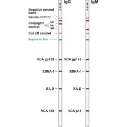 EBV ViraStripe® IgG Test Kit, 50 tests
