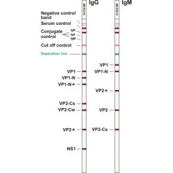 Parvovirus B19 ViraStripe® IgG Test Kit, 25 tests